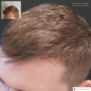 9 miesięcy po przeszczepie włosów profil lewy 1