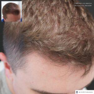 9 miesięcy po przeszczepie włosów profil prawy 1