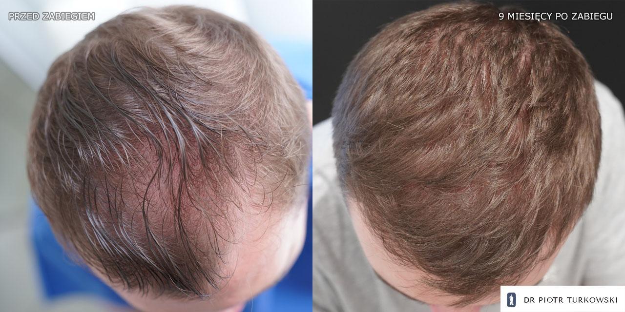 9 miesięcy po przeszczepie włosów