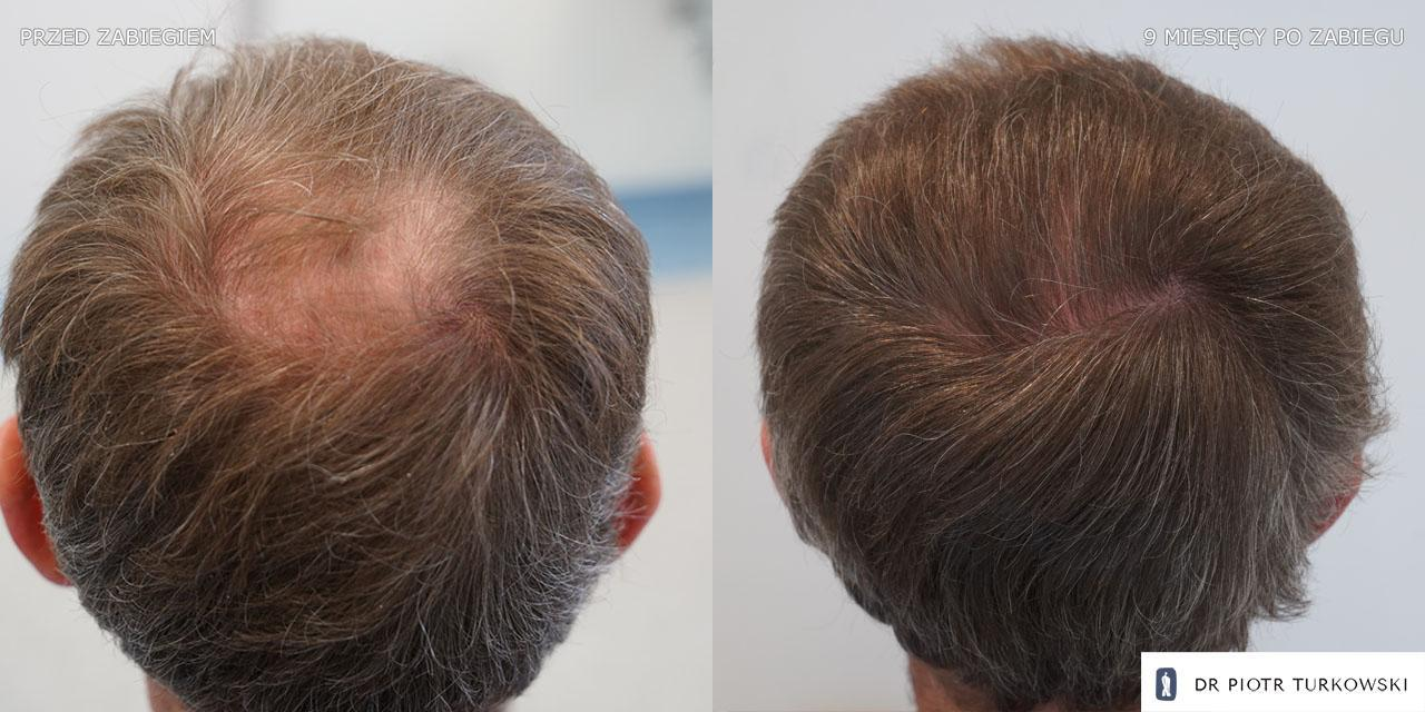 the results of Mr. Grzegorz's hair transplant
