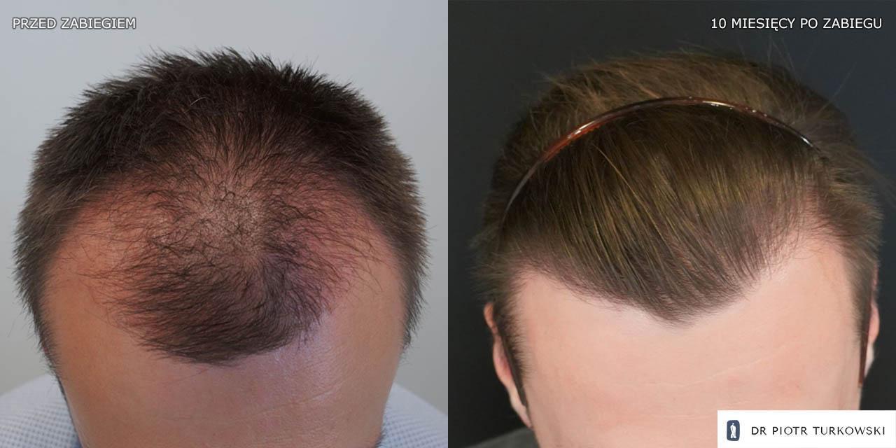 efekty transplantacji włosów pana marka t