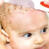 Cradle cap – symptoms and treatment