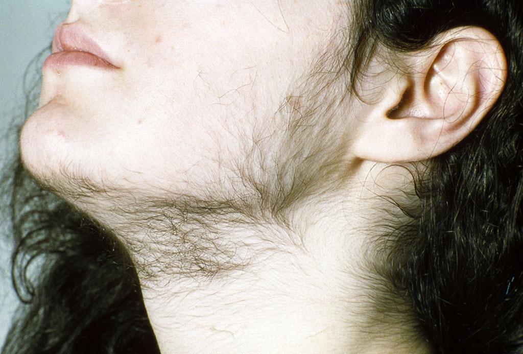 hirsutyzm - nadmierne owłosienie na twarzy