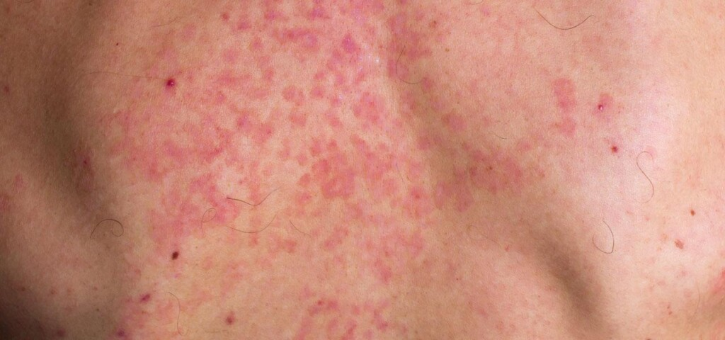 pityriasis versicolor on the back