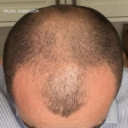przeszczep włosów przed