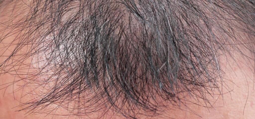przerzedzone włosy na czubku głowy