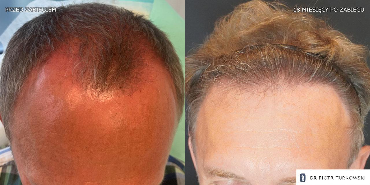 szymon m bend hair transplant