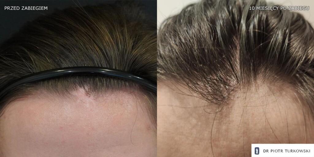 300 grafts hair transplant on a scar