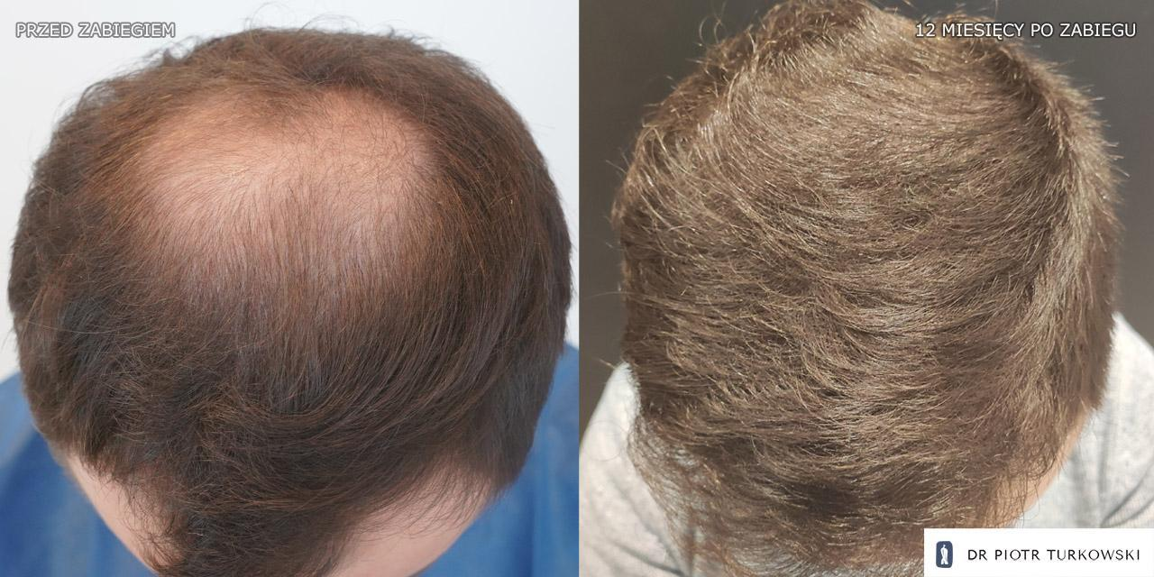 hair transplant in the middle of the head, bends of 3000 grafts