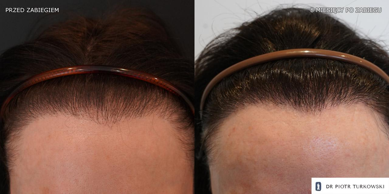 hair transplant for a woman 1450 grafts