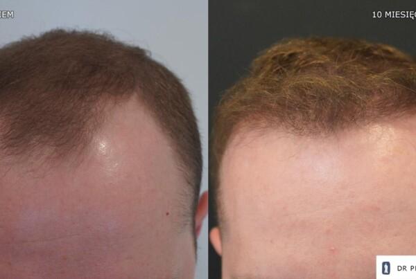 przeszczep włosów u mężczyzny 2000 graftów