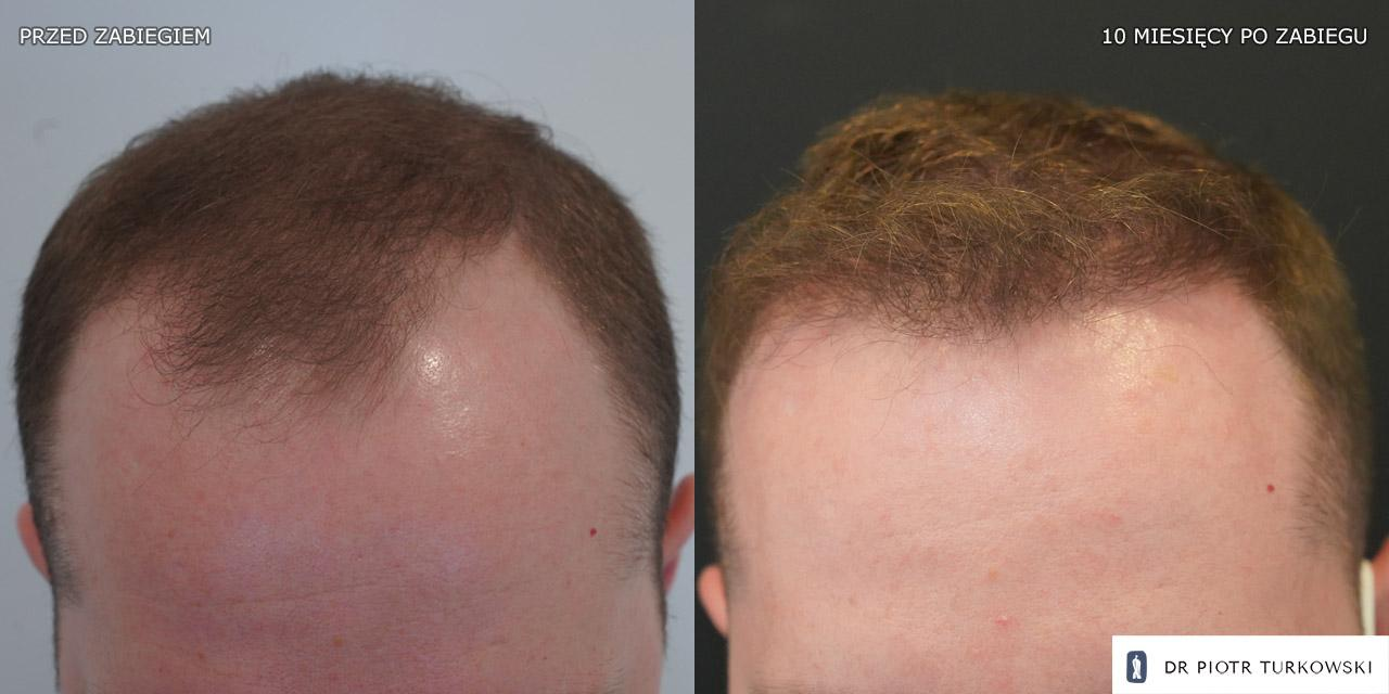 hair transplanntation for men 2000 grafts