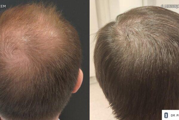 przeszczep włosów u mężczyzny 3000 graftów
