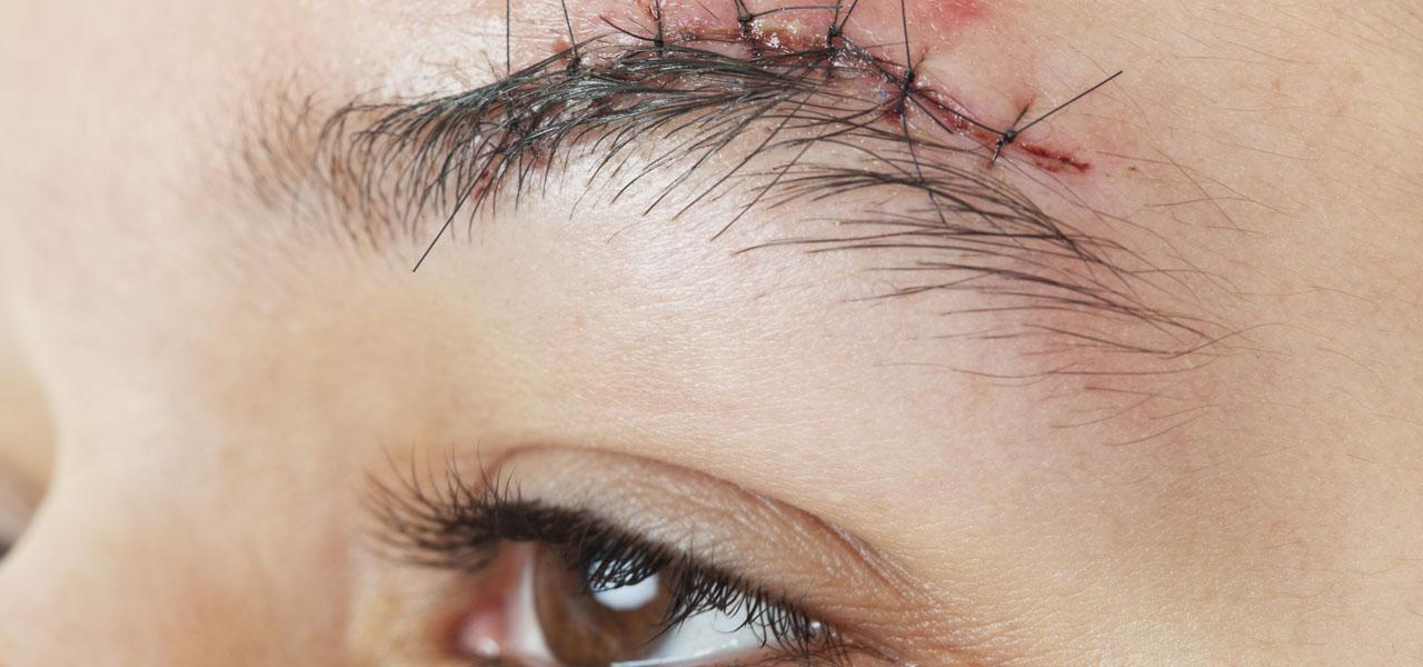 Hair transplantation in places of scars