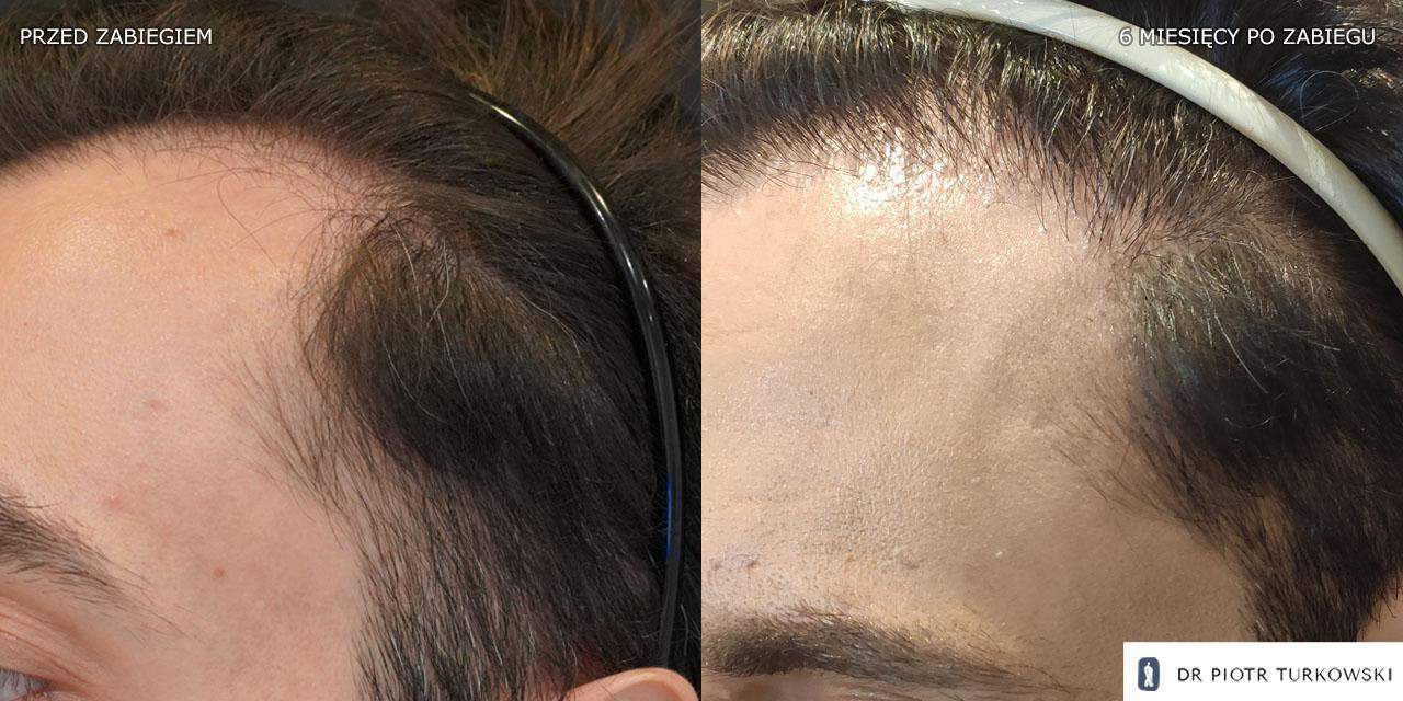 przeszczep włosów zakola u meżczyzny 2000 graftów