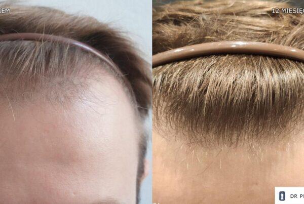transplantacja włosów u mężczyzny zakola 2000 graftów