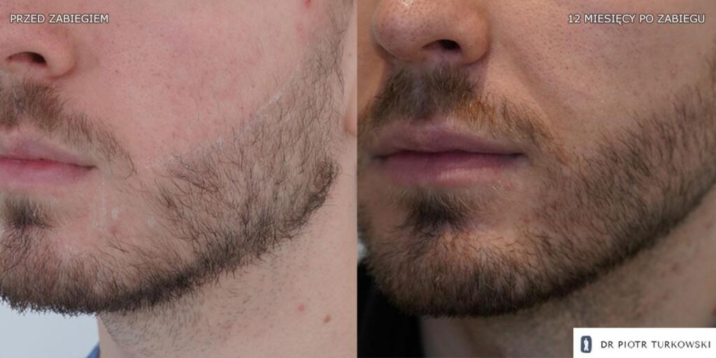 przeszczep brody 1100 graftów