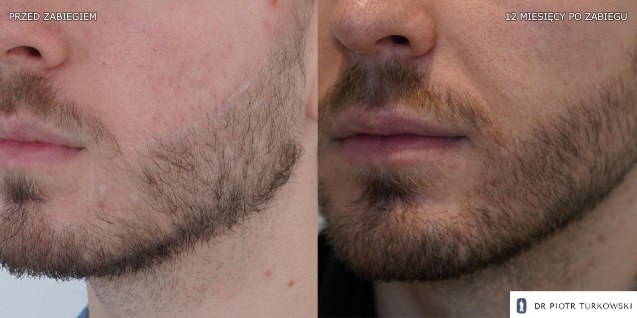 beard transplant 1100 grafts